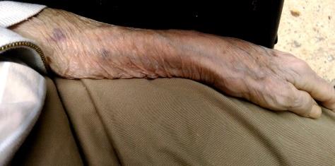 My mother's arm. Fairfax Nursing Center, Virginia. Sunday, 22 June 2014.